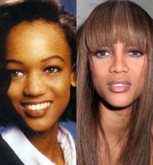 Звезды до и после ринопластики 36 фото