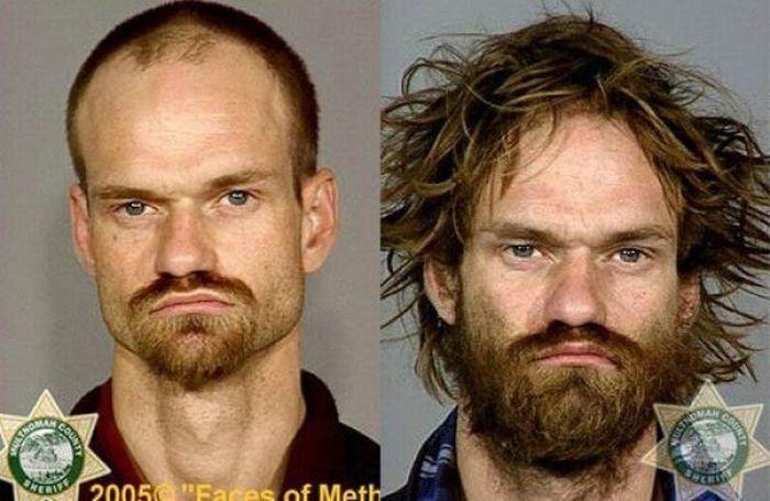 До и после метамфетамина 38 фото