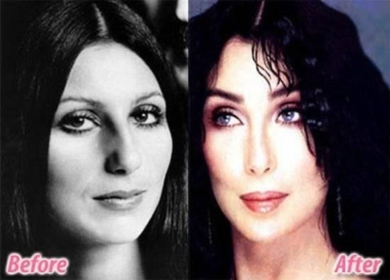 До и после операций для сравнения