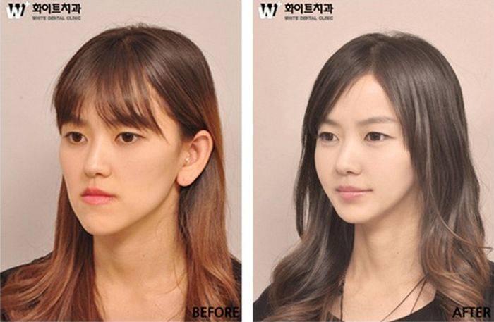 приснился китаец и кореец брака