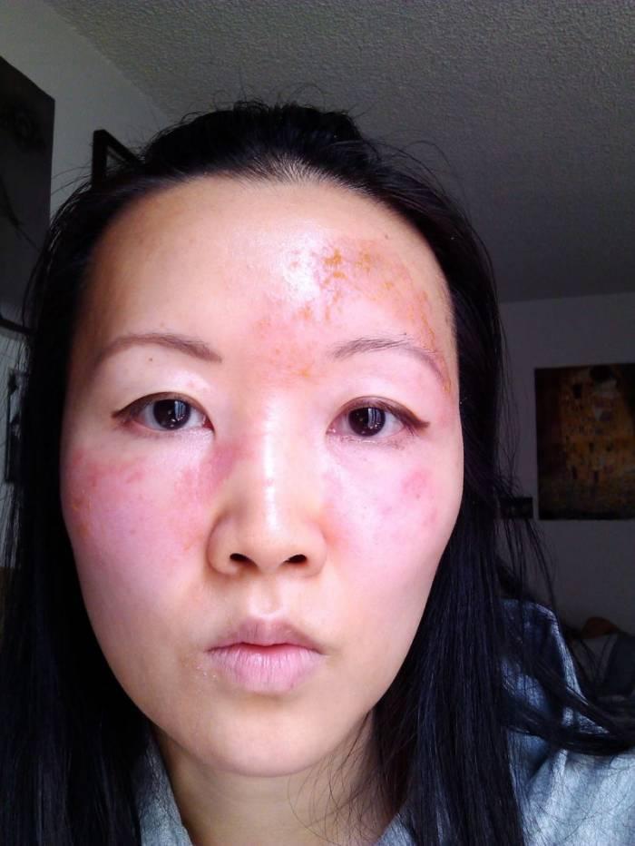 аллергия в 50 лет