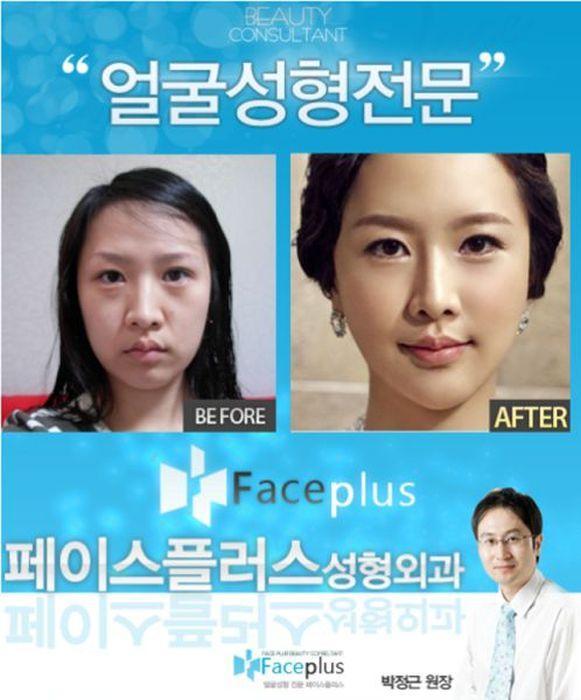 До и после пластической операции 60