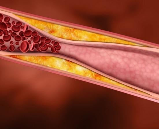 повышенный холестерин в крови у женщин