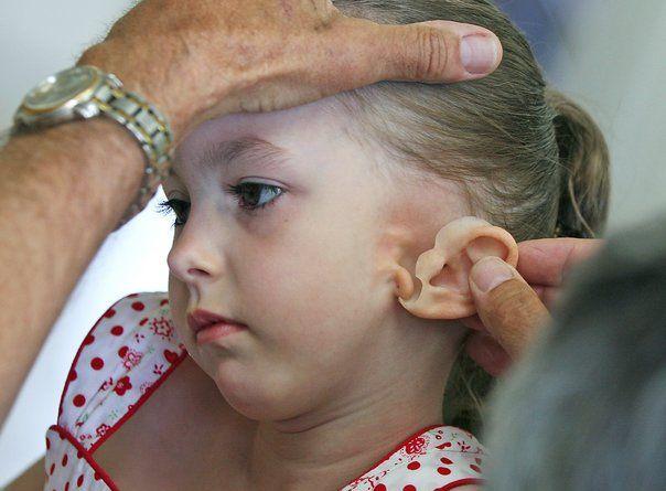 Искусственное ухо