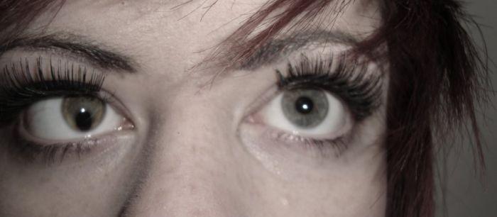 Коломба радужки глаза представляет собой заболевание,