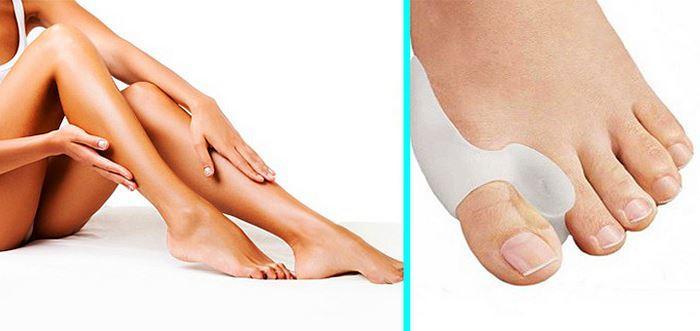 Косточки на ногах причины возникновения и механизм появления