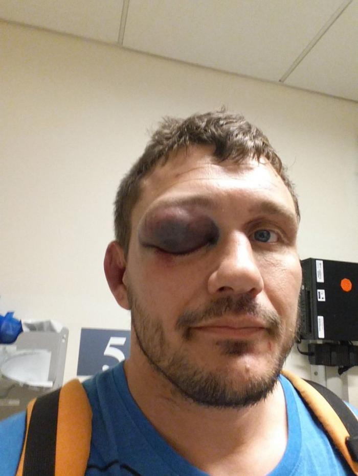 Самая отвратительная травма глаза в истории MMA (9 фото)
