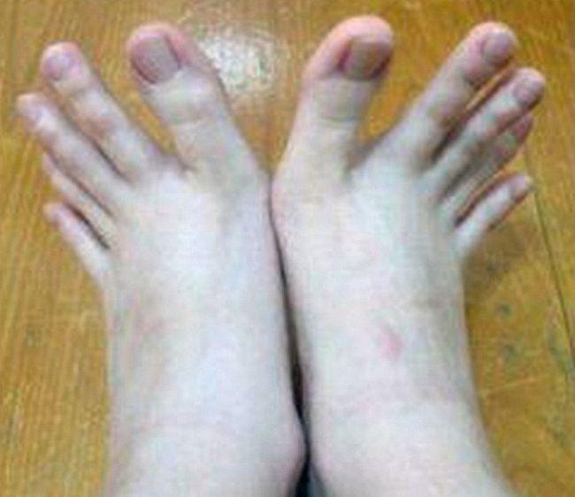 Сперма у девочки на пальцах ног фото 18 фотография