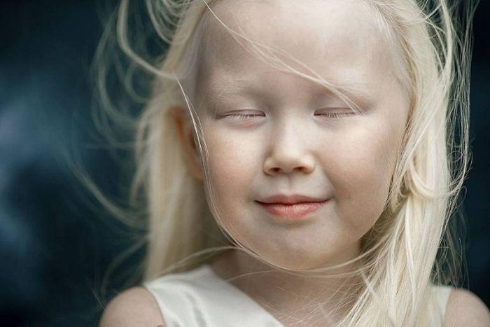 8-летняя девочка-альбинос Нарияна из Якутии