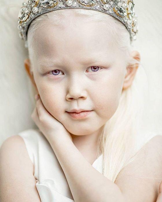 8-летняя девочка-альбинос Нарияна, зовут «Снежной королевой» (7 фото)